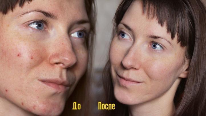 Энзимный пилинг, фото до и после